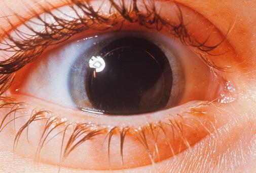 Действие минимального светового потока на глаз